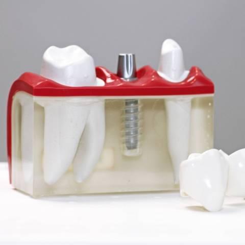 bolwerk tandartsen maastricht | klikgebit, kroon of brug op implantaten | implantaten plaatsen is pijnloos