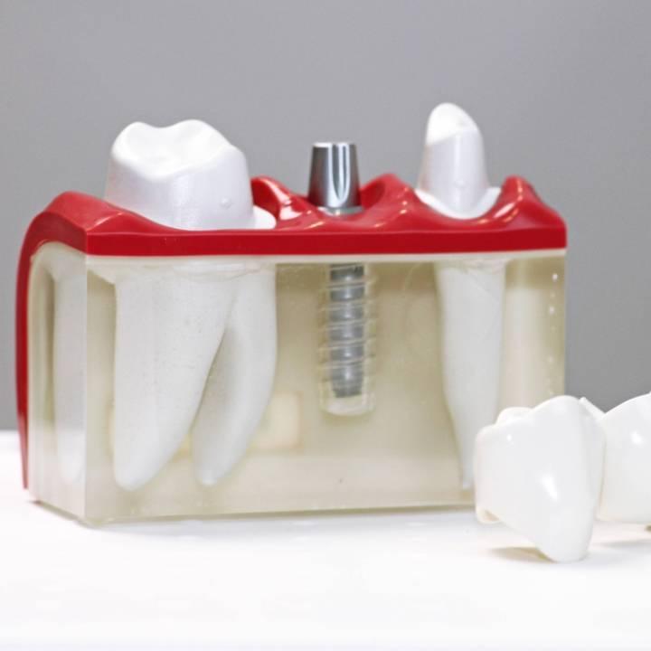implantoloog maastricht | what are implants maastricht | bolwerk tandartsen maastricht
