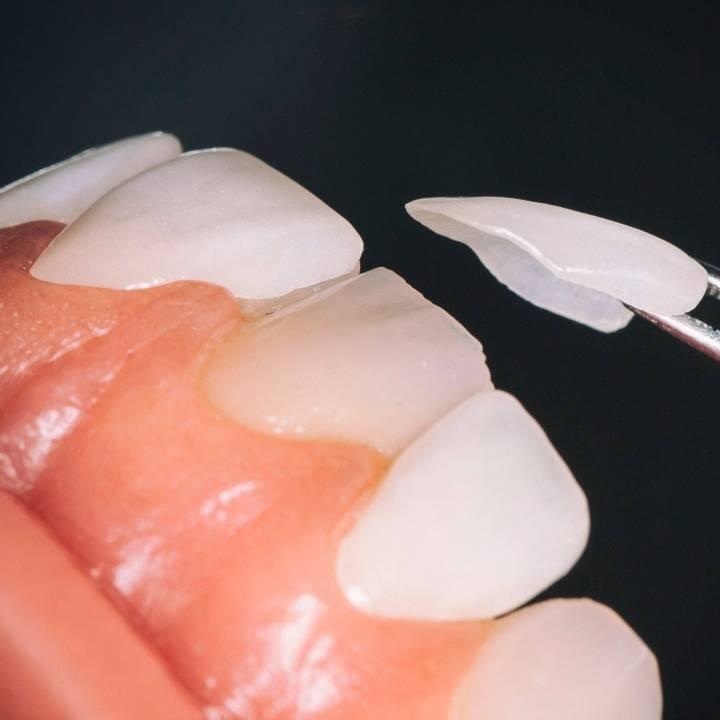 facings tanden voor en na
