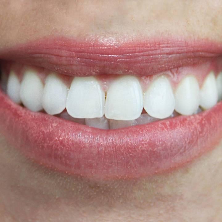 tanden bleken ervaringen